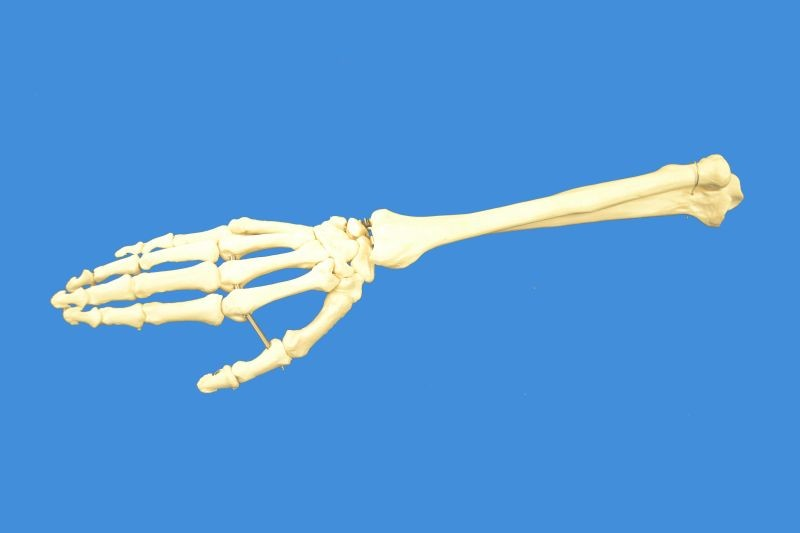 Human Right Hand with Ulna and Radius Skeleton Model, Life Size